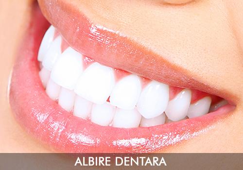 albire-dentara-servicii