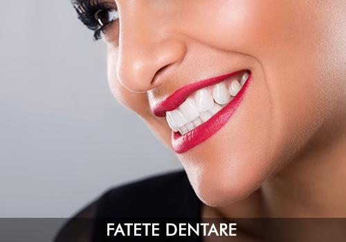 fatete-dentare-servicii