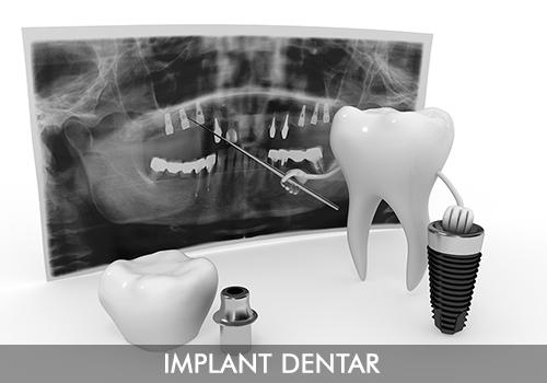 implant-dentar-servicii