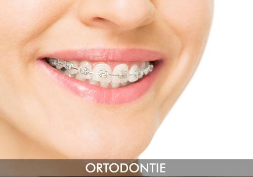ortodontie-servicii