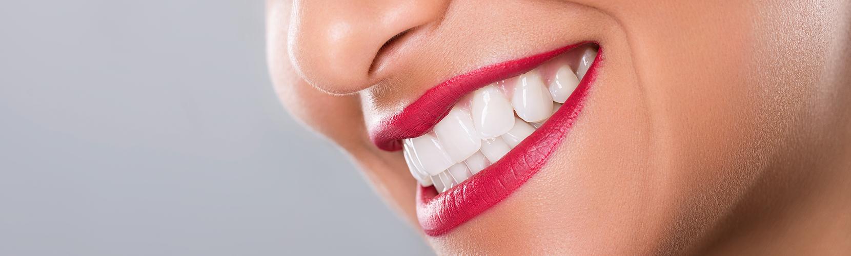 albire-dentara-bucuresti